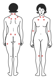 Common tender points for those with fibromyalgia.