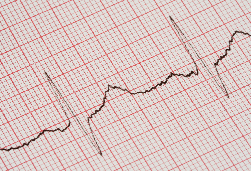 electrocardiogram (EKG).