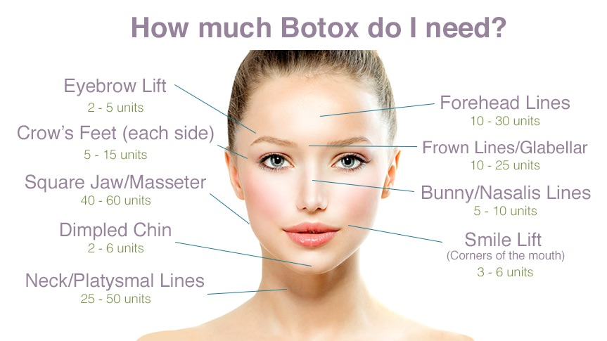 how-much-Botox-Dysport