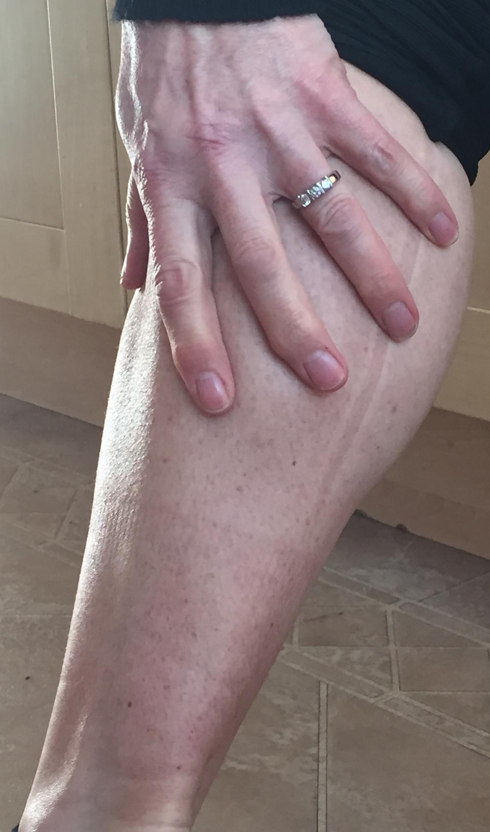Calf pain when running