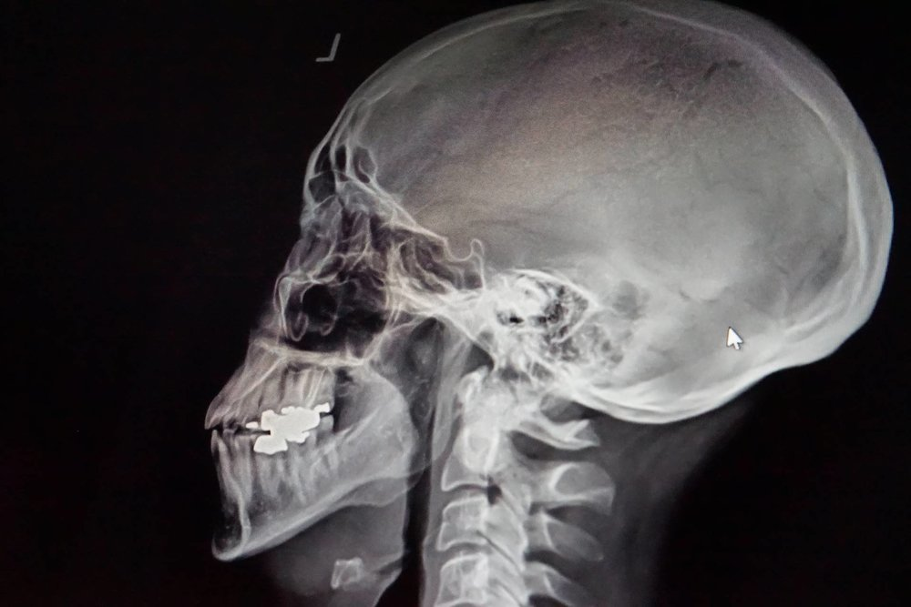 X-Ray-of-Upper-Cervical-Correction.jpg
