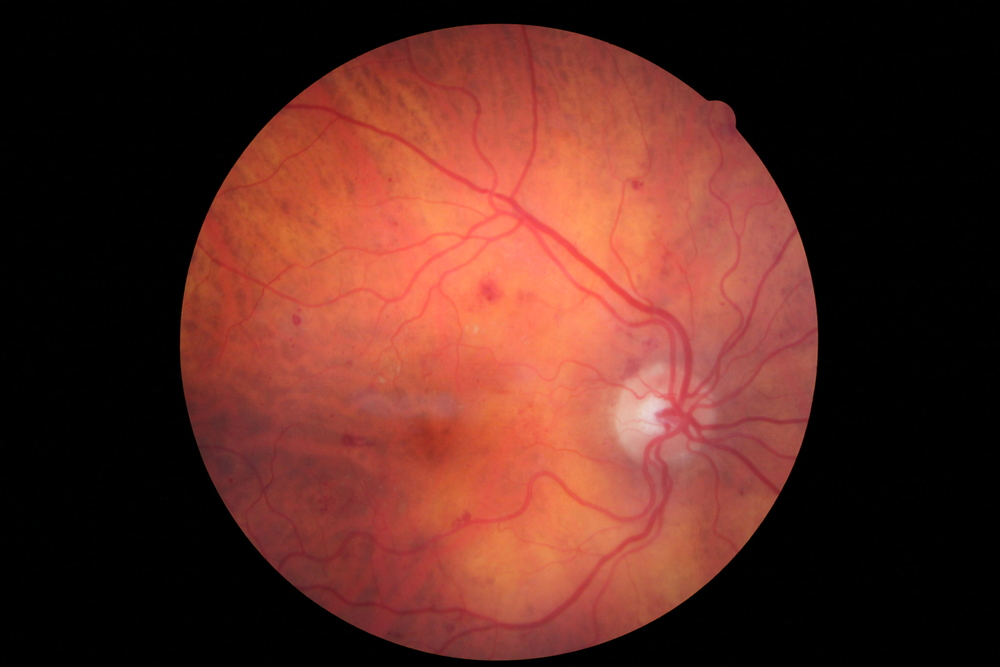 Diabetic Retinopathy.  Note the hemorrhages and small white exudates.