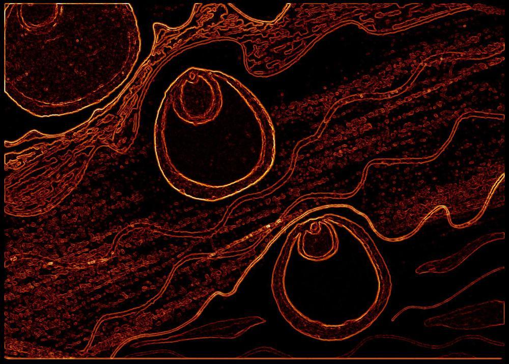 Endometrium2.jpg