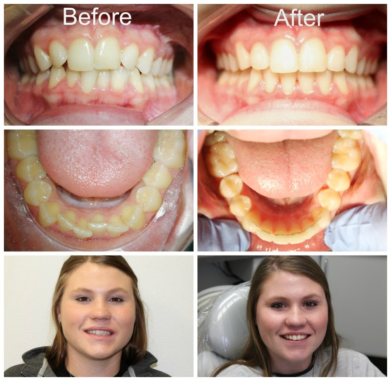 Rebekah Daniels Before & After Braces