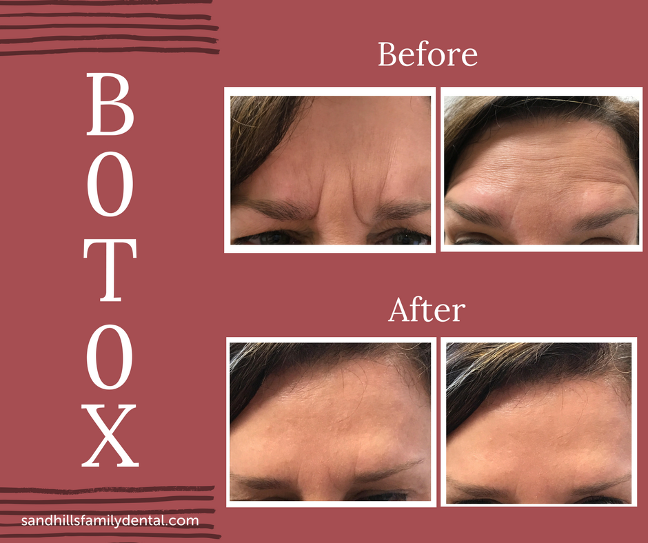 Botox Before%2FAfter (1).png