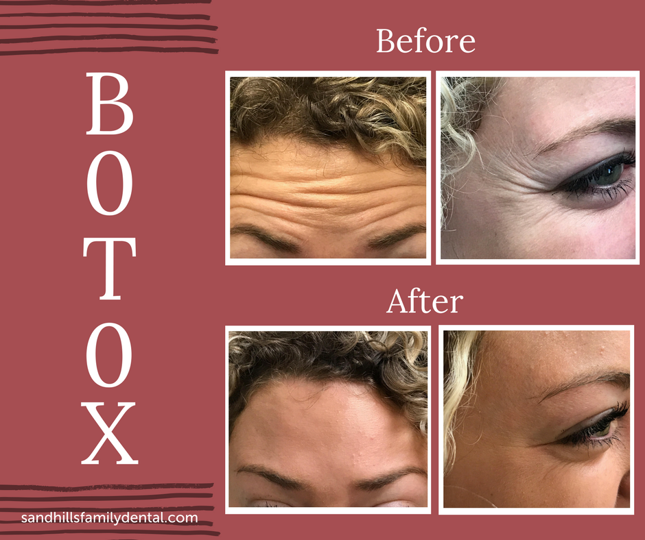 Botox Before%2FAfter.png