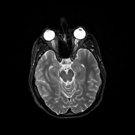 MRI_brain_top2.jpg