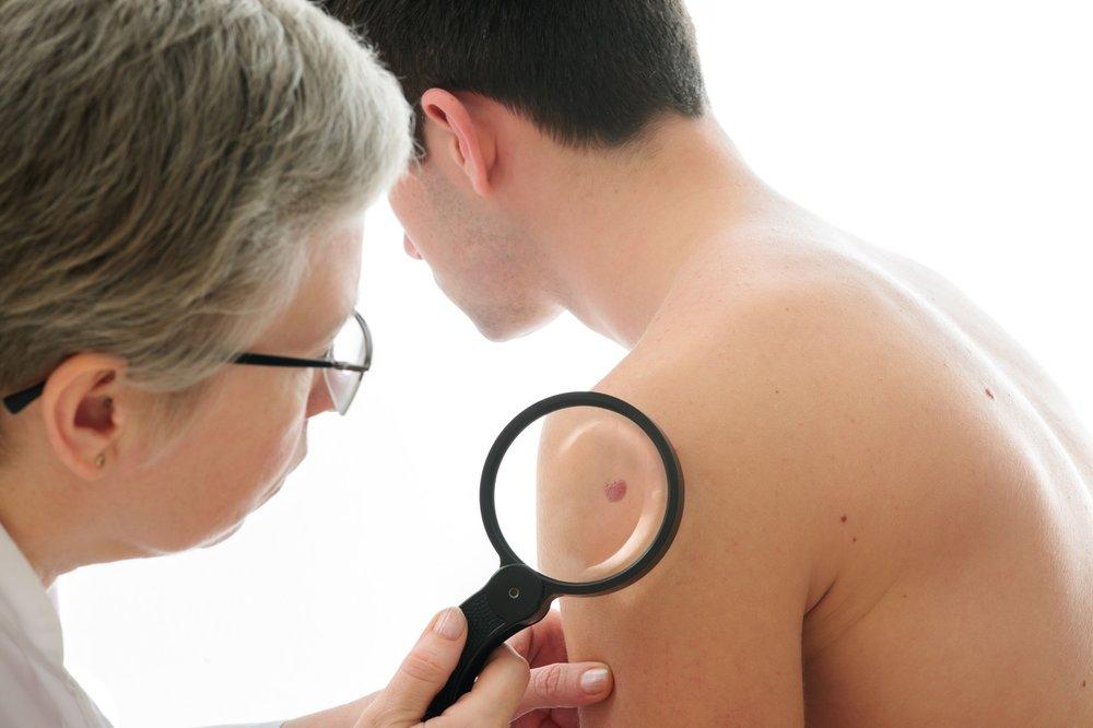Dermatologist Skin Screening