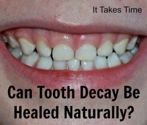 Can Tooth Decay be Healed Naturally? by It Takes Time