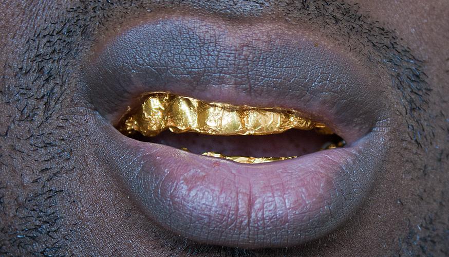 Gold Foil Study
