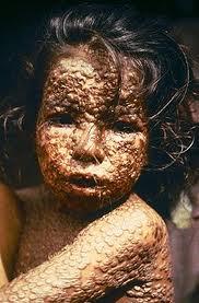 Deklica, okužena s črnimi kozami.