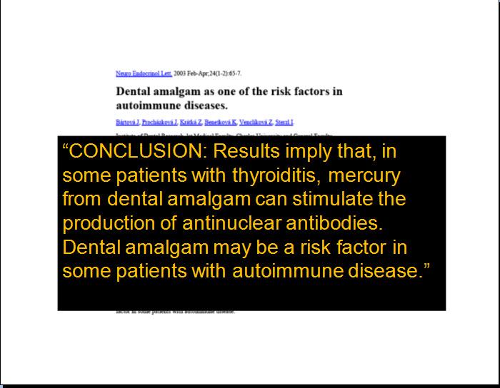 Amalgams-Autoimmunity.jpg