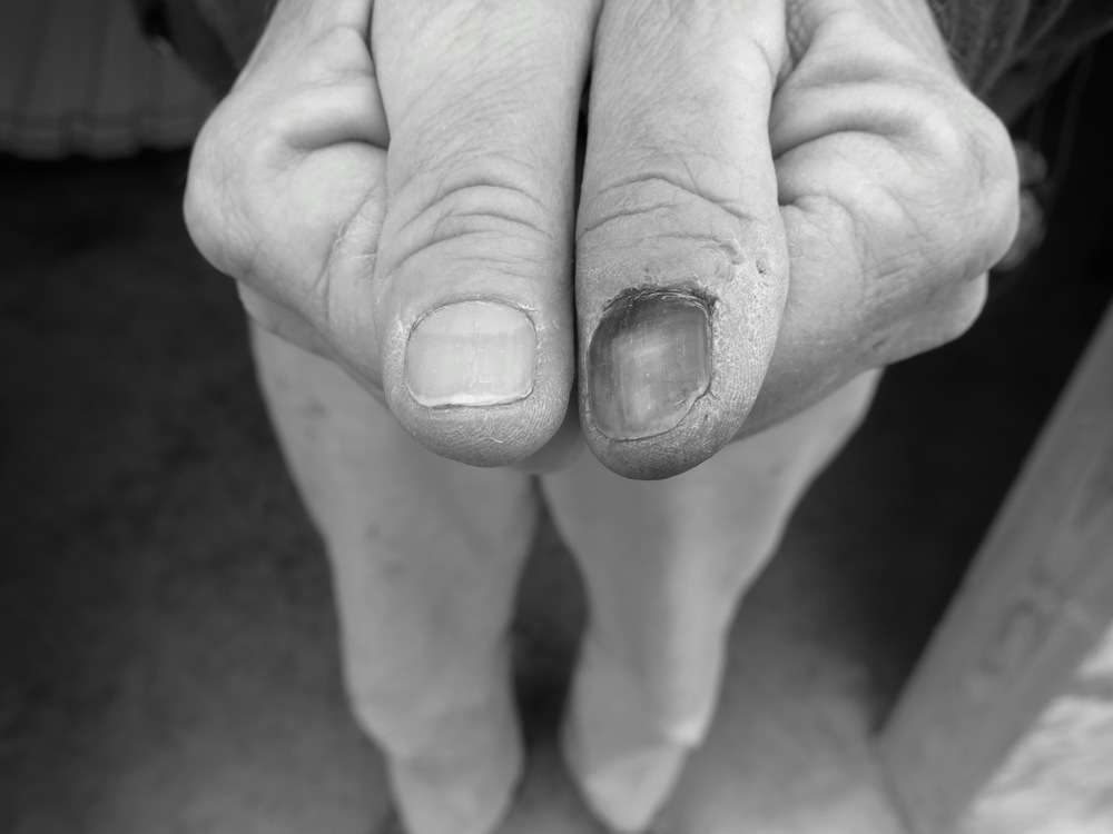 13 January 2015: This happened early on but the effects are everlasting. Van's thumb after he hammered into it, several weeks later.