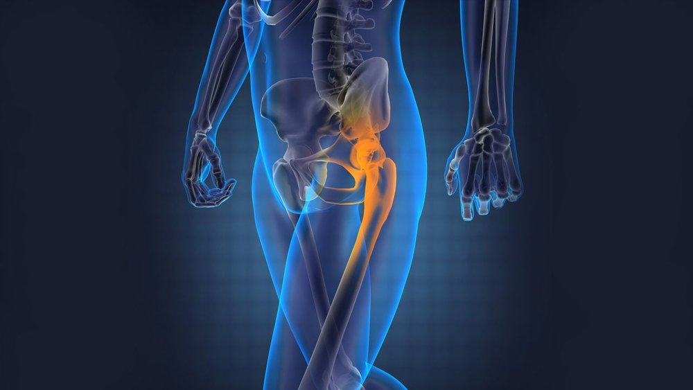 Hip Pain– Not Just for the Elderly — Penrose Physical Therapy