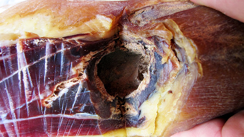 The mould filled cavity on the bone