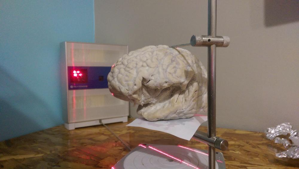 Real brain!