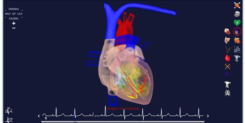 epicardio_simulation_anatomy_1680x1260.jpg