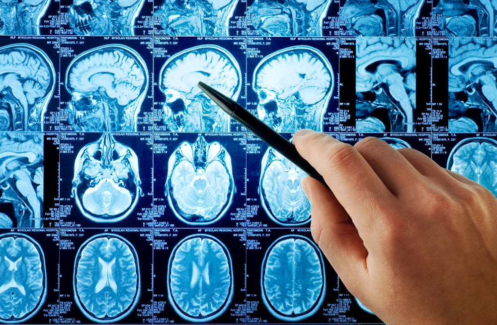 Neurology_shutterstock_13885375.jpeg