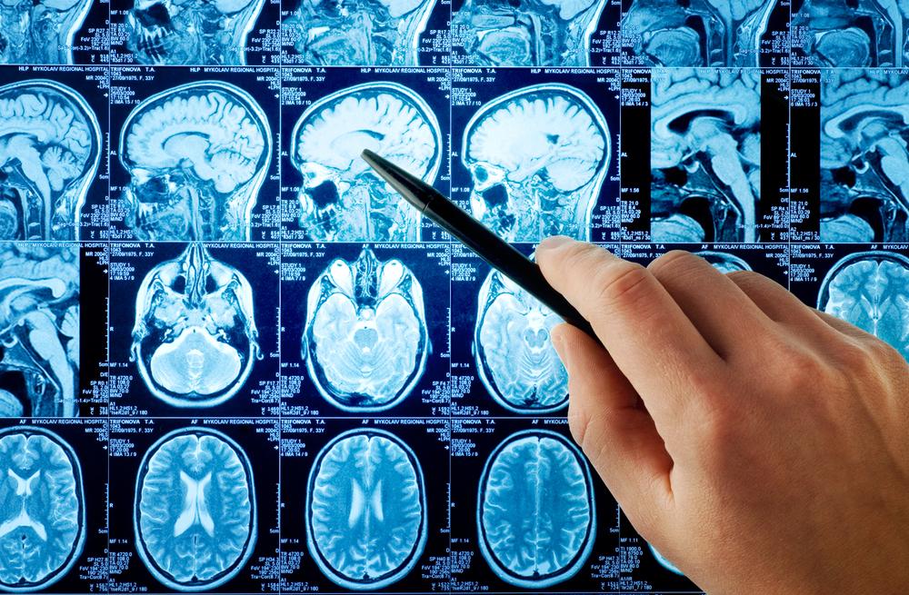 Neurology_shutterstock_13885375.jpeg