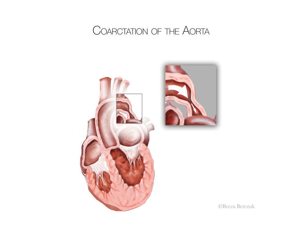 Coarctation of the Aorta,  Adobe  Photoshop  and Illustrator