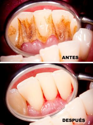 Limpieza dental - Profilaxis dental