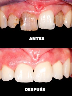 Tratamiento dental integral