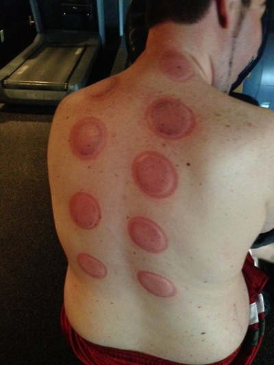 Cupping_Therapy2.jpg