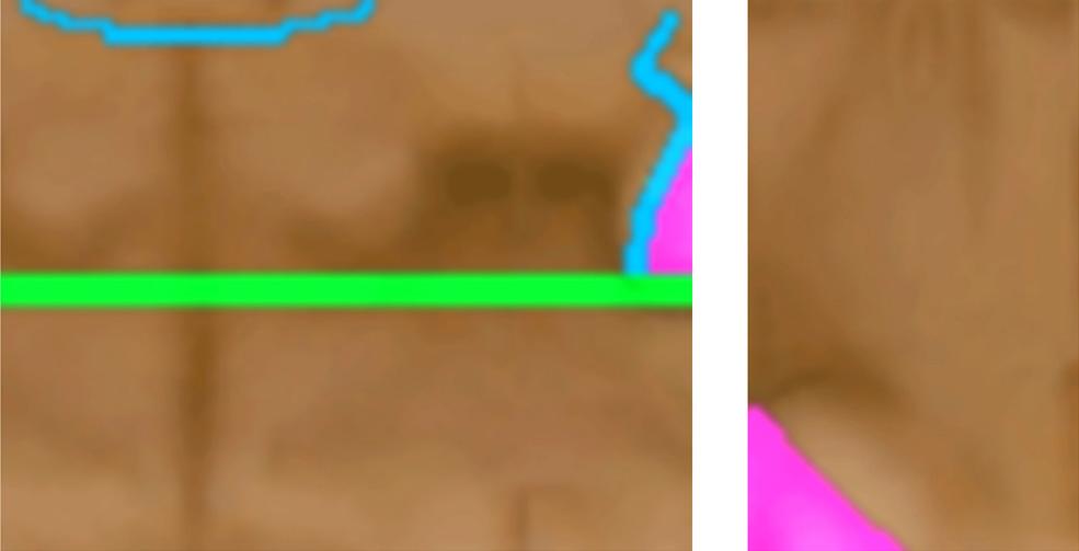 skin11borderless.jpg
