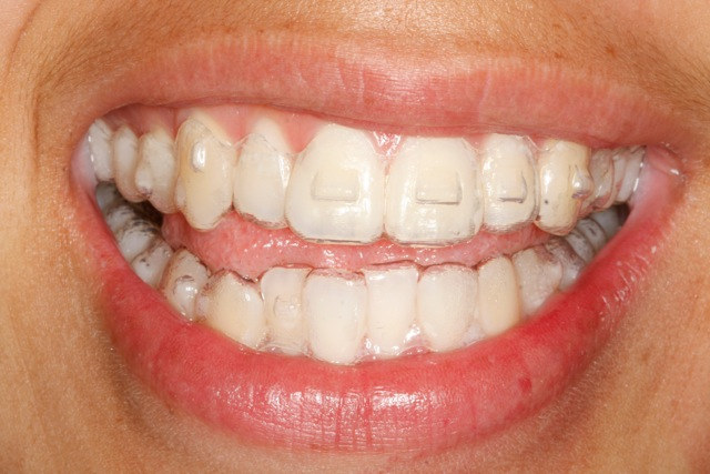how to keep invisalign aligners clean
