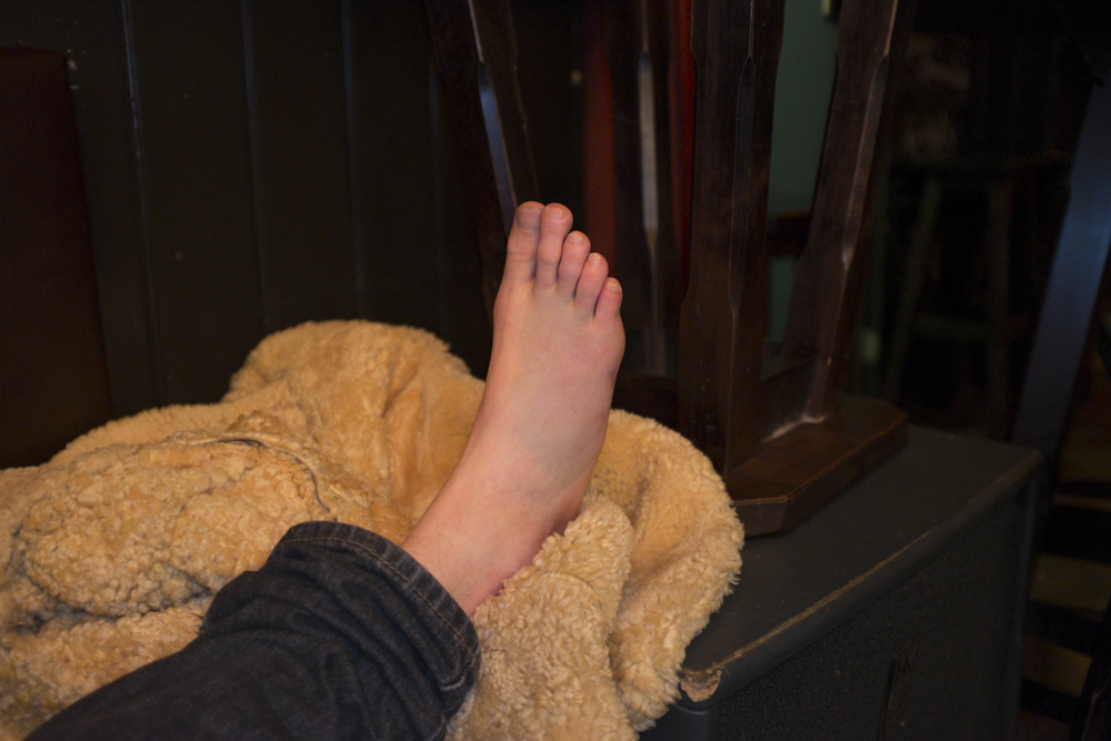 Fatty bobatty broken (very badly sprained) foot.