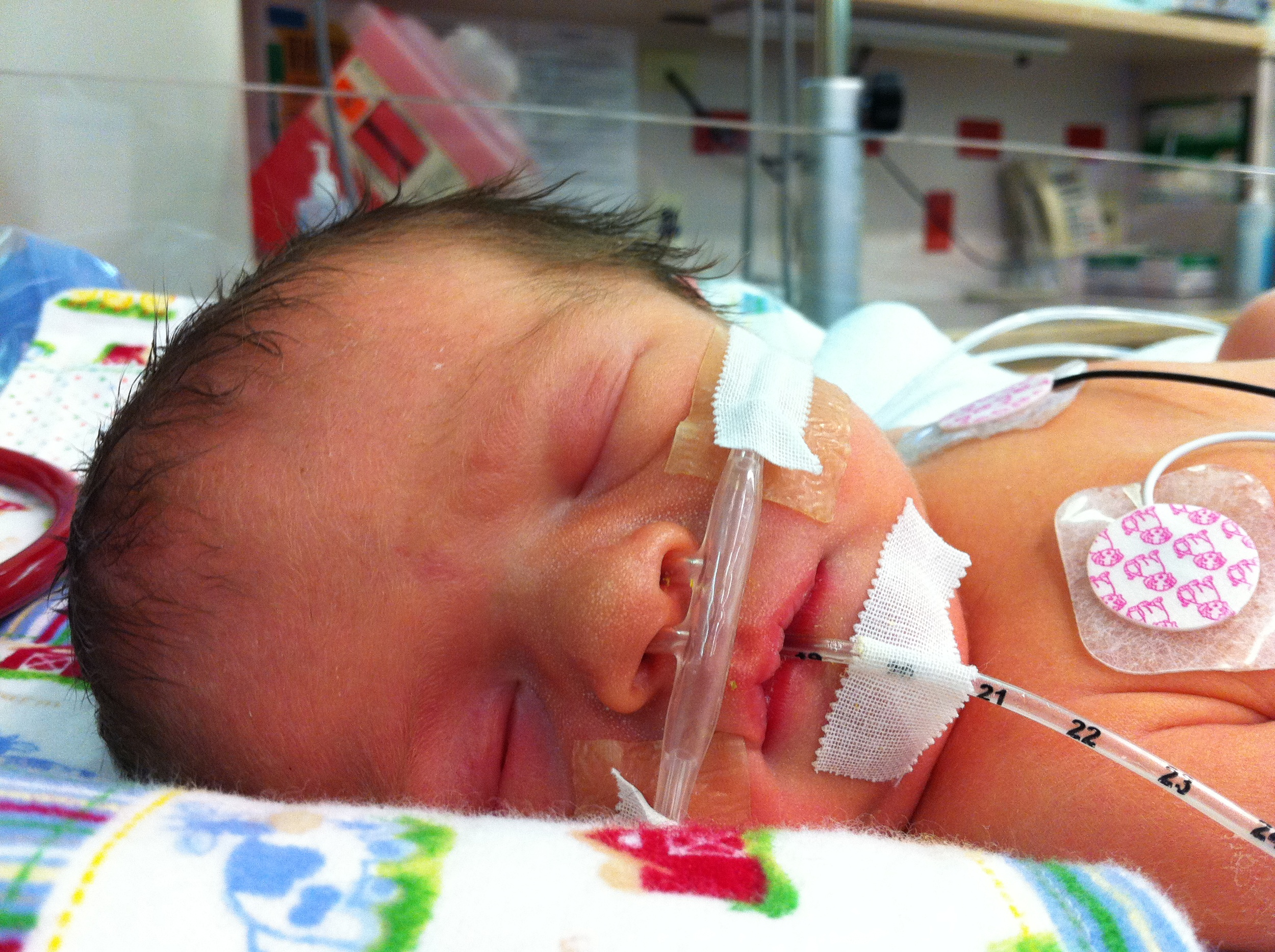 lincoln, daniel, brad, titus, blog, wishard, hospital, premature, baby, premie, boy, son, childbirth, CPAP, feeding, tube, pulse, oximeter