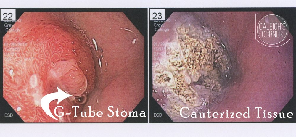 G-button stoma granulation tissue via Caleigh's Corner