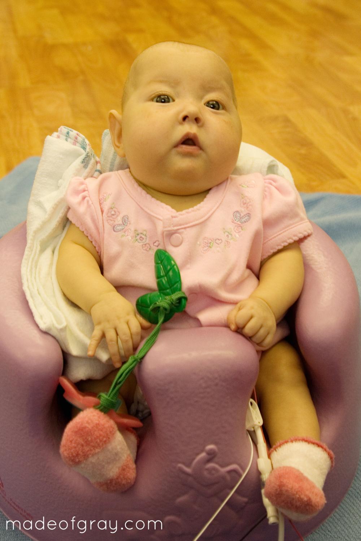 Microcephaly PVL Prematurity via MadeofGray.com