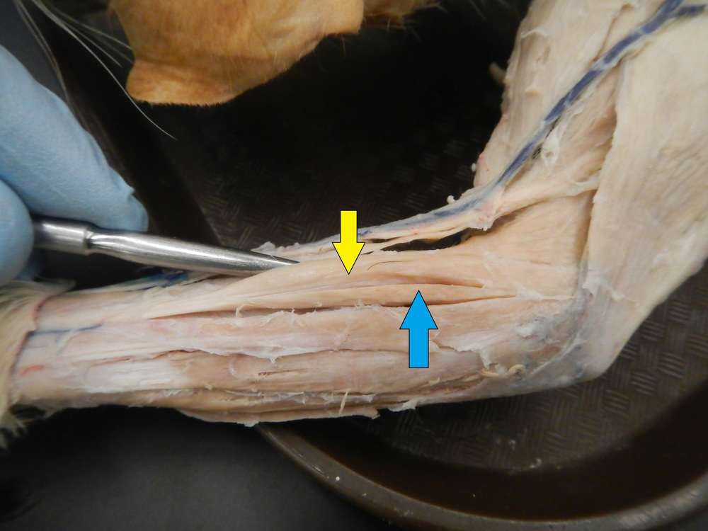 Extensor Carpi Radialis Longus and Brevis    Blue: Brevis   O - Lateral epicondyle of humerus  I - Base of 3rd metacarpal   F - Wrist extension and abduction    Yellow: Longus   O - Above lateral epicondyle of humerus   I - Base of 2nd metacarpal  F - Wrist extension and abduction