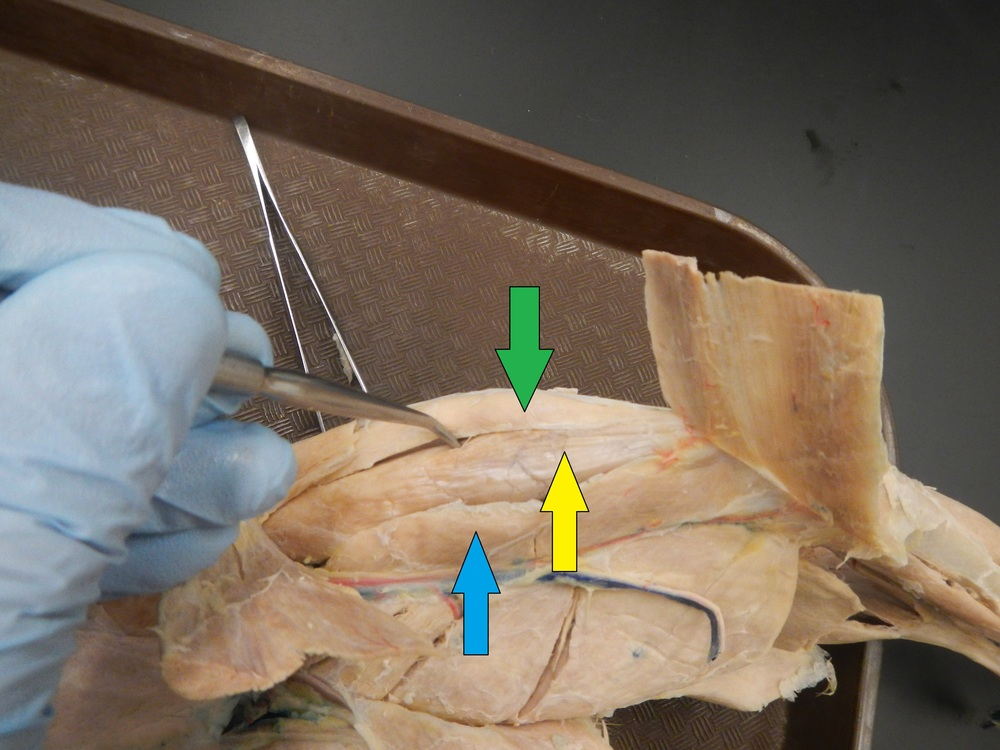 Quadriceps Blue:  Vastus Medialis Yellow:  Rectus Femoris Green: Vastus Lateralis