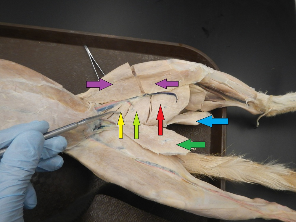 Hamstrings and Adductors Purple: Sartorius Yellow: Adductor Longus Light Green: Adductor Femoris Red: Semimembranosus Dark Green: Gracilis - Reflected Blue: Semitendinosus