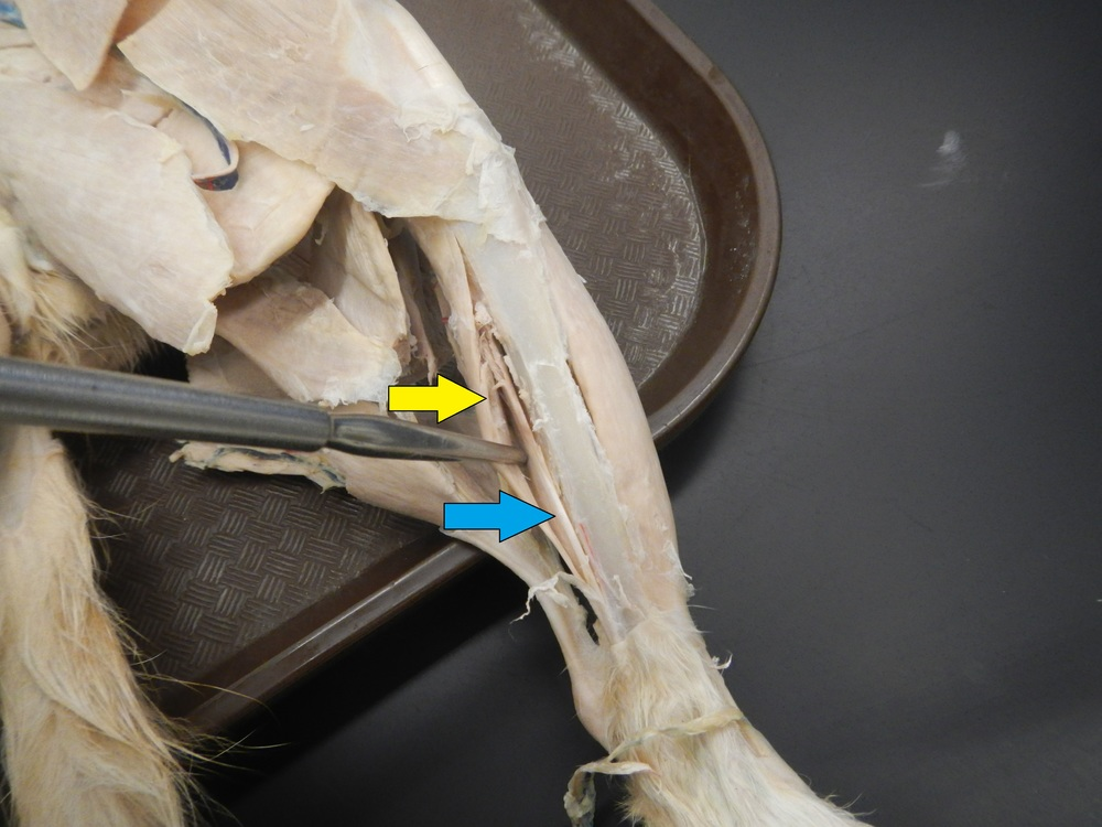 Tibialis Posterior and Flexor Digitorm Longus    Yellow: Flexor Digitorum Longus    Blue: Tibialis Posterior