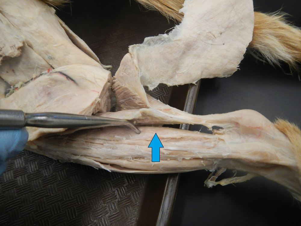 Flexor Hallucis Longus - Lateral View