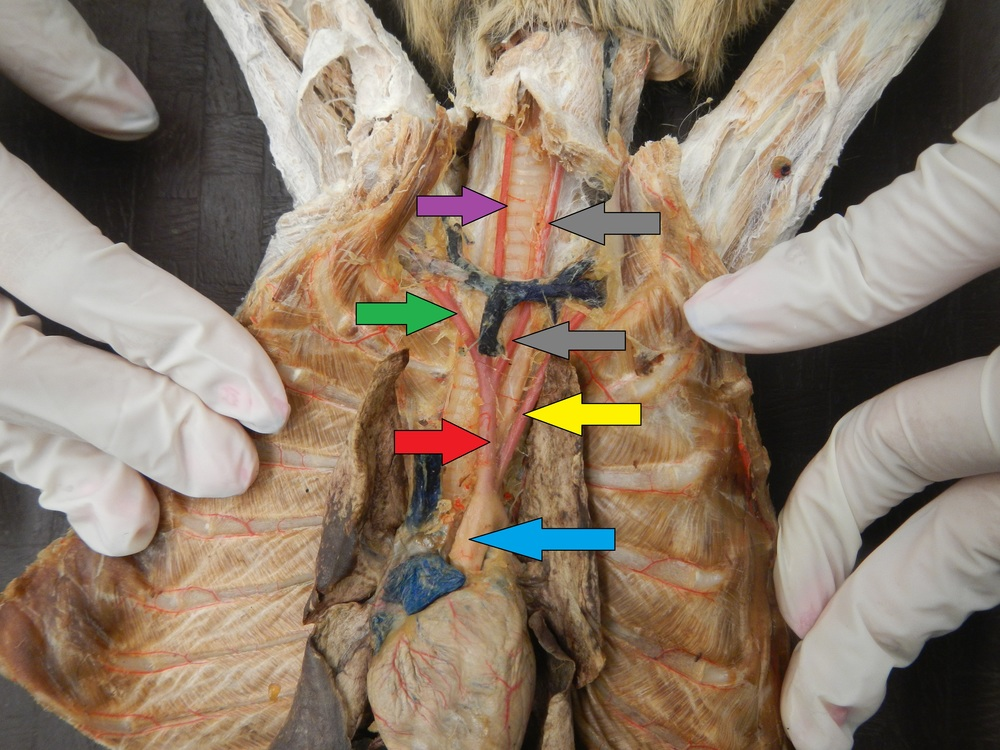 Blue - Aorta (Will not be tested on)  Red - Brachiocephalic Artery  Yellow - Left Subclavian Artery  Grey - Left Common Carotid Artery  Purple - Right Common Carotid Artery  Green - Right Subclavian Artery