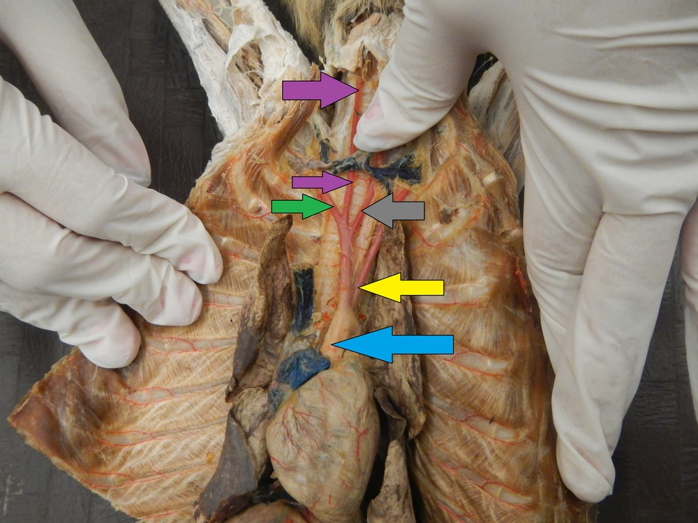 Blue - Aorta (Will not be tested on)  Yellow - Left Subclavian Artery  Grey - Left Common Carotid Artery  Purple - Right Common Carotid Artery  Green - Right Subclavian Artery