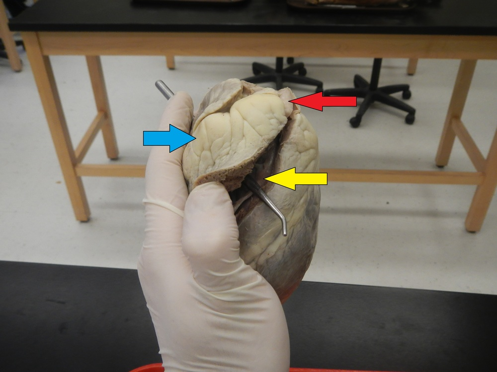 Blue - Right Atrium   Red - Pulmonary Artery   Yellow - Right Ventricle