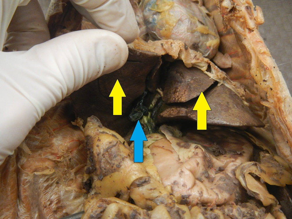 Blue - Gall Bladder  Yellow - Liver