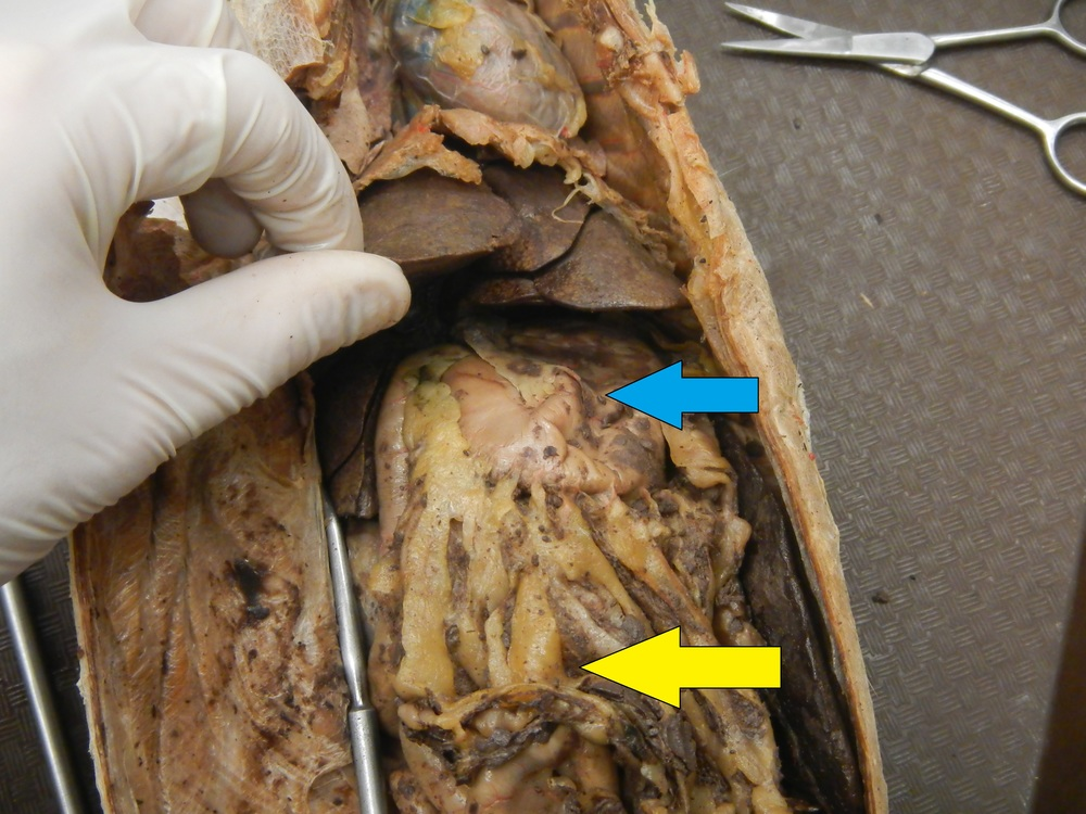 Blue - Stomach  Yellow - Greater Omentum