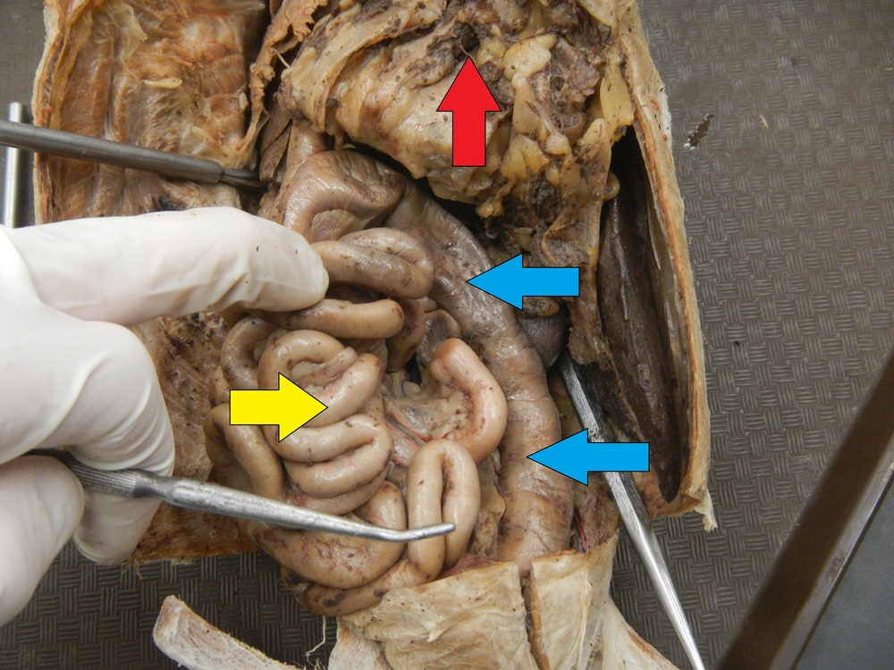 Blue - Large Intestine  Yellow - Small Intestine  Red - Greater Omentum (Reflected)