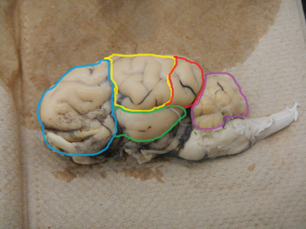 Blue Outline - Frontal Area/Lobe  Yellow Outline - Parietal Area/Lobe  Red Outline - Occipital Area/Lobe  Green Outline - Temporal Area/Lobe  Purple Outline - Cerebellum