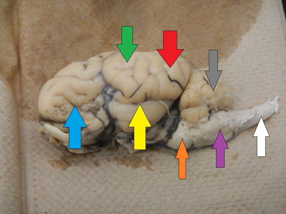 Blue - Frontal Area/Lobe  Green - Parietal Area/Lobe  Red - Occipital Area/Lobe  Yellow - Temporal Area/Lobe  Grey - Cerebellum  Orange - Pons  Purple - Medulla  White - Spinal Cord