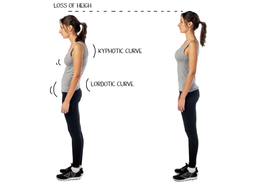 Combined with strengthening exercises and myofascial stretching, Myofascial Release helps to restore better posture.