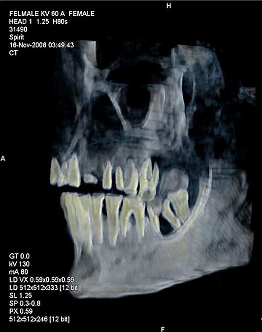 Røntgenbilde av hodeskallen