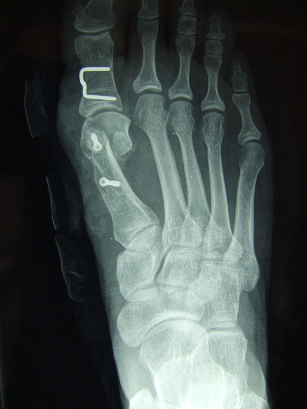 X-Ray of a Hallux Valgus deformity after surgical correction  with a scarf osteotomy.