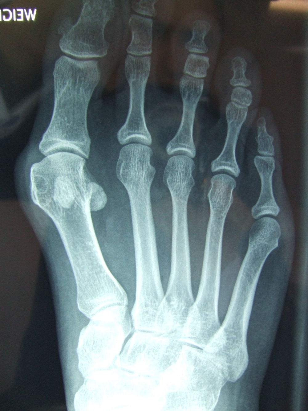 X-Ray of a Hallux Valgus deformity before surgical correction.